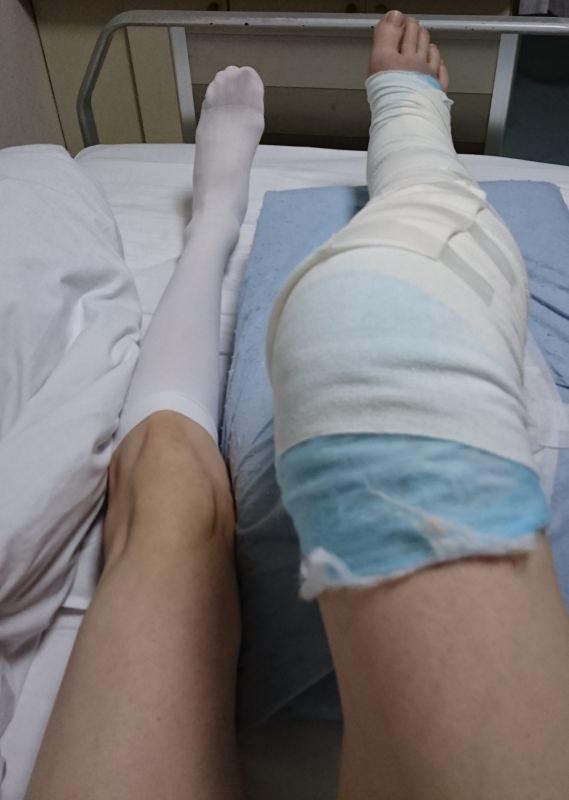 骨折で腫れ上がった脚